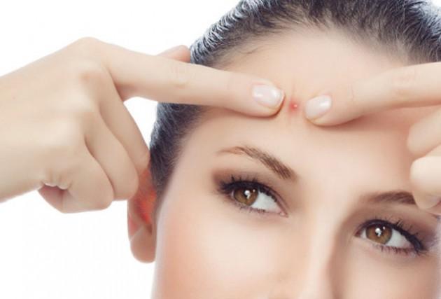 Tại sao nặn mụn khiến mặt để lại thâm - sẹo và cách khắc phục ?
