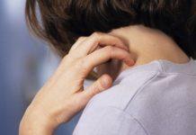 Nacurgo Gel dùng cho viêm nang lông