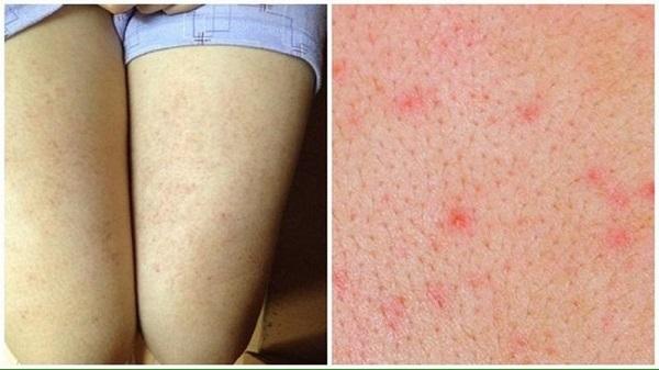 Cách trị viêm lỗ chân lông ở bắp chân