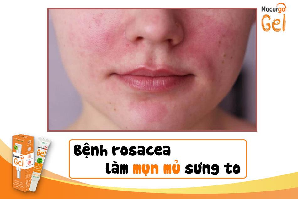 Bệnh Rosacea làm mụn mủ sưng to