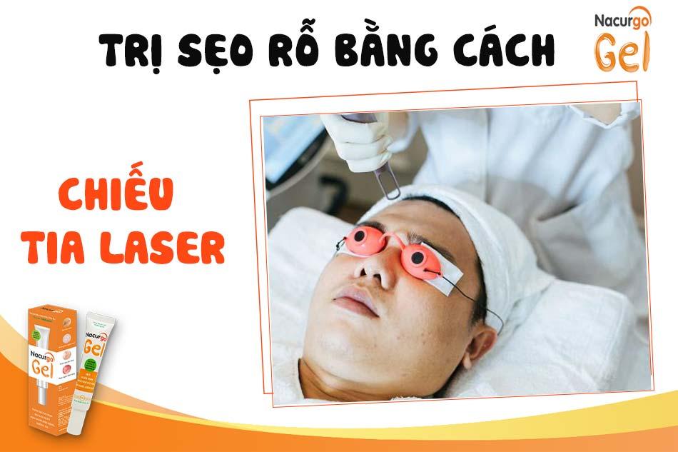 Điều trị sẹo rỗ bằng chiếu tia Laser CO2