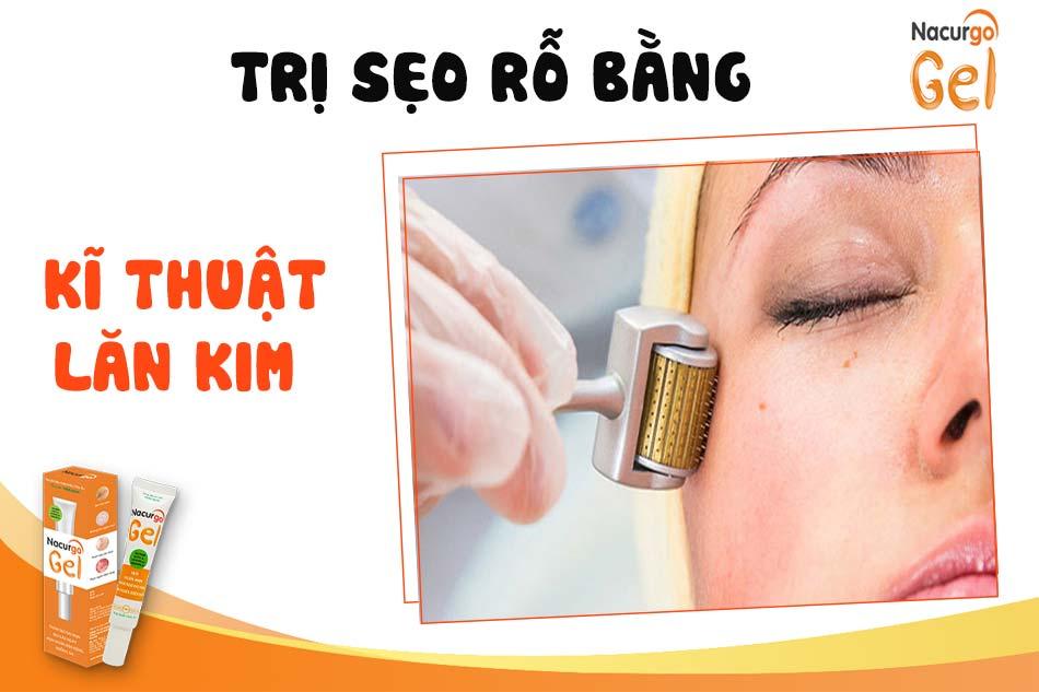 Điều trị sẹo rỗ bằng công nghệ lăn kim