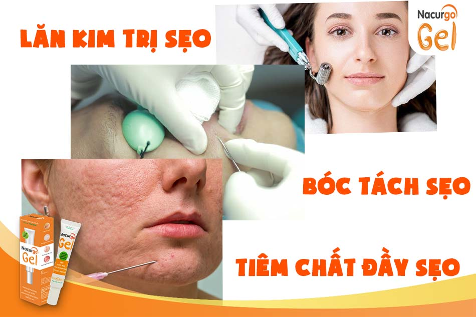 Một số liệu pháp trị sẹo lõm