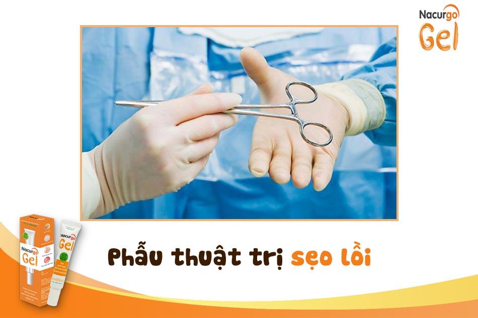 Phẫu thuật trị sẹo lồi