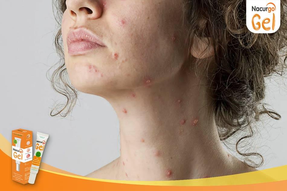 Bệnh thủy đậu là nguyên nhân gây sẹo lõm