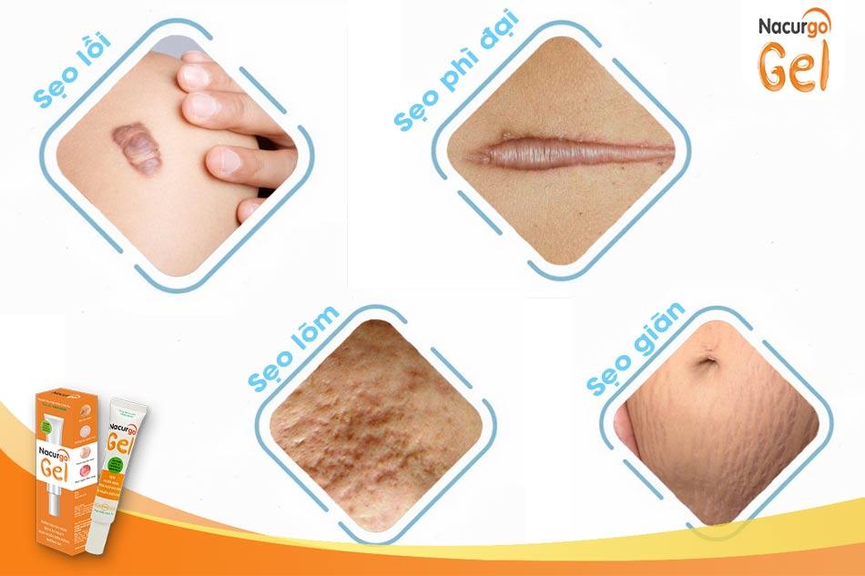 Kem trị sẹo