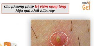 Trị viêm nang lông