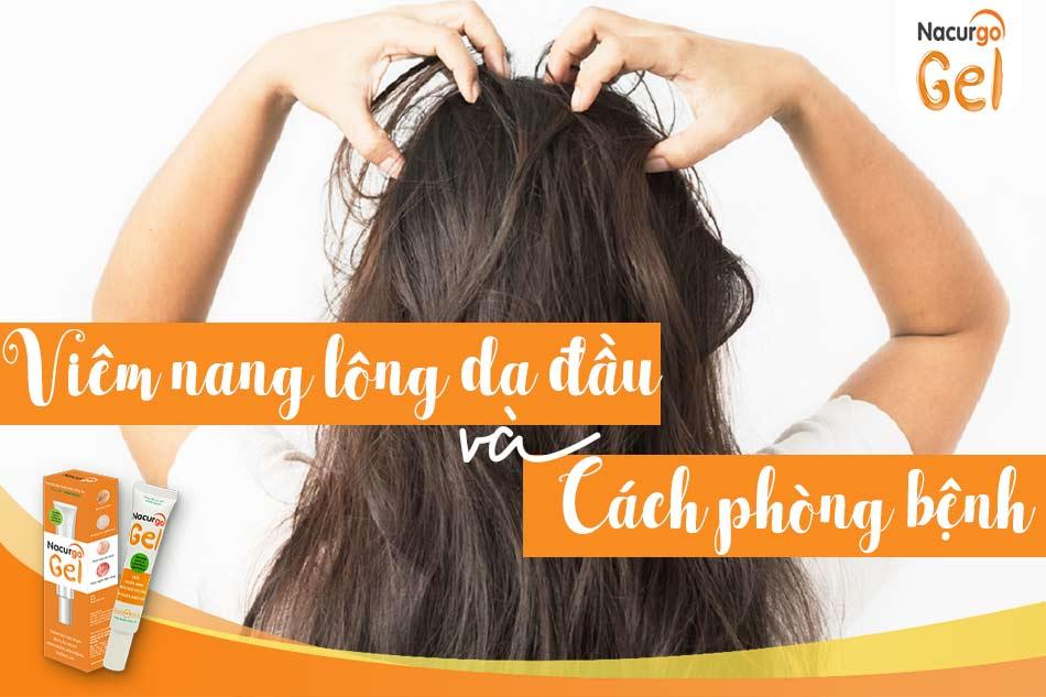Viêm nang lông da đầu là gì và cách phòng ngừa