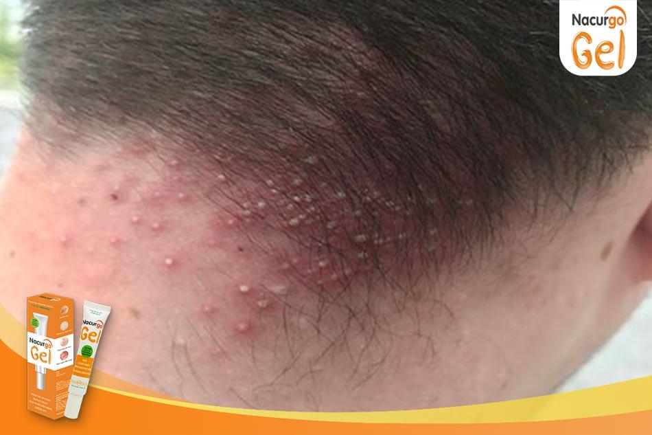 Triệu chứng của viêm nang lông da đầu